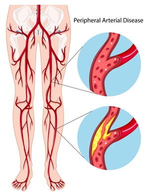 diagram of the legs showing normal and diseased peripheral arteries
