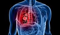new subtype of lung cancer