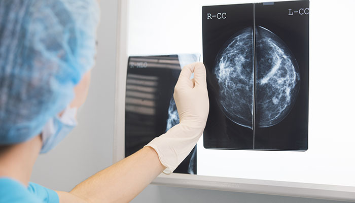 Breast Cancer X-rays