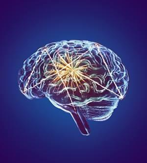 Neurology | BIDMC of Boston