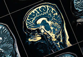 Brain MRI - Parkinson's Disease