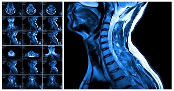 Otolaryngology/Head and Neck Surgery at BIDMC | BIDMC of Boston