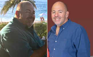 Michael Colizzi before (left) and after having bariatric surgery