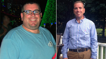Jeff before having weight loss surgery (left) and six months after (right).