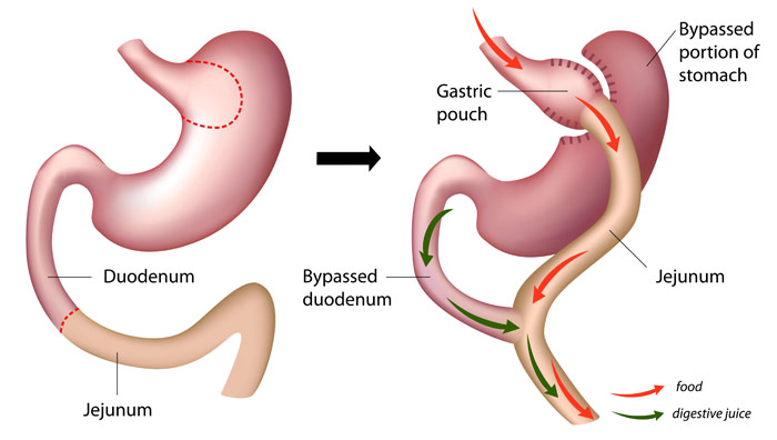 Before and After Roux-en-Y Gastric Bypass Surgery Illustration