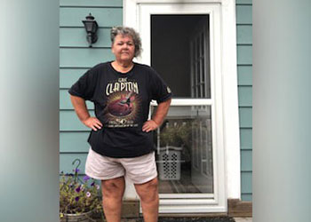 BIDMC Weight Loss Surgery Patient Susan Jackson - After Photo