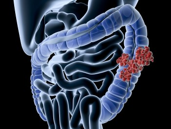 Colon cancer image