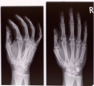 X-ray of hand surgery